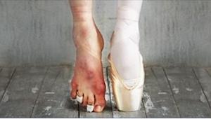 15 billeder, som viser skønheden og... det hæslige ved ballet.