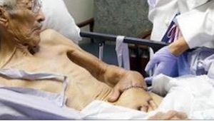 Lægerne syede en 87-åriges hænder... i maven. Jeg sidder stadig og undrer mig ov