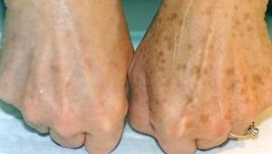 Her er en hel enkel måde til at fjerne farveændringer på huden! Super!
