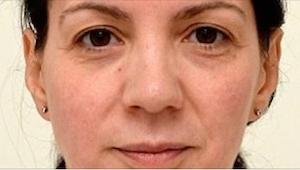 Denne kvinde drak 3 liter vand dagligt gennem 4 uger. Resultaterne kan ses med d