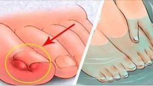 5 enkle metoder, som hjælper dig med at klare problemer med indgroede negle! Hal