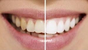 Her er 9 naturlige trick til at få et hvidere smil! Uden kemikalier eller unødve