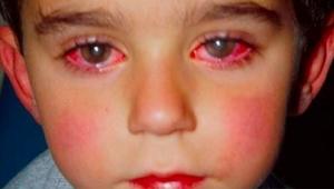 SE HER: Denne dreng mistede 75% af synet på grund af et stykke legetøj, som I he