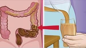 Der er ikke nogen bedre metode ved tarmproblemer! I stedet for at stoppe sig med