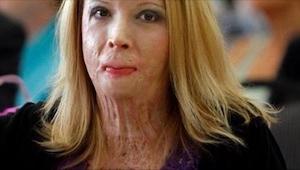 Det som skete med hende, er et sørgeligt eksempel på vold I hjemmet. Det kunne v