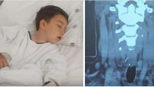 Drengen fik en kraftig mavepine, efter at have spist en hamburger. På hospitalet