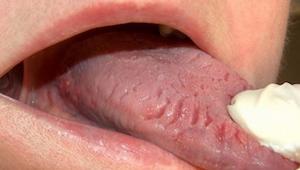De 9 hyppigste ændringer på tungen, og hvad de betyder.