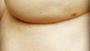 Et uskyldigt billede af et bryst indeholder tegn på brystkræft som de færreste k