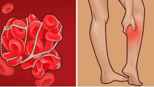 Blodpropper – stille mordere. Find ud af, hvordan man genkender tegnene på blodp