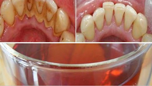 Hvis du gerne vil have smukke og sunde tænder, så smid mundskyllemidlet i affald