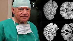 Neurokirurger slår alarm. Enhver kvinde bør kende disse fakta!