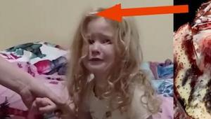 Den lille pige var ved at blive paralyseret, og kunne nemt være død af det. De f