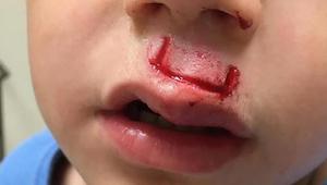 Dette populære legetøj nærmest eksploderede i ansigtet på hans søn – nu advarer