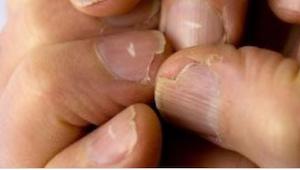 5 problemer med neglene, som kan pege på problemer med alvorlige sygdomme.