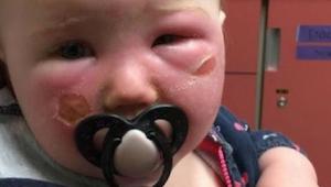 Advarsel!!!! En mor advarer andre forældre mod solcreme - den forbrændte hendes