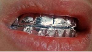 Anbring sølvpapir på tænderne, og vent en time. Effekten vil overraske dig!