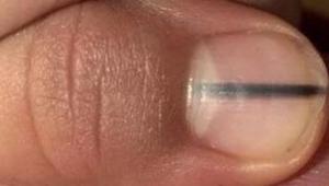 Chokerende: En manicurist bemærkede en sort linje på en klients negl og bad hend