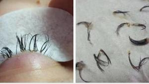 Den rædselsslagne kosmetolog advarer alle kvinder mod denne katastrofale fejl!