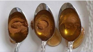 Det, man kan lave med honning og kanel, er fænomenalt!