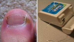 Nedgroede negle? Det er ikke nødvendigt at gå til lægen. Læs om 6 enkle metoder,