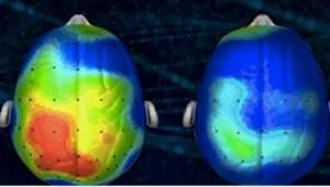 Neuloger har skabt en sang, som reducerer angst og uro. Har I allerede hørt den?