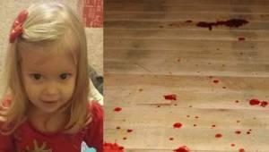 Den toårige pige blev blå og begyndte at kaste blod op. Kort efter døde hun. Det