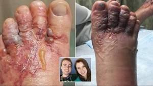 Der skete noget frygteligt med deres fødder, efter at de havde løbet barfodede p
