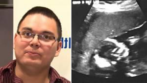 Manden besvimede næsten da han så ultralyd billedet. Sygeplejersken sagde, at de