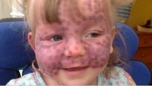 Da lægen så hende, troede han, hun havde usædvanlige blå mærker på hendes ansigt