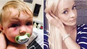 En skandaløs dom over en mor, som tævede sin otte måneder gamle datter!