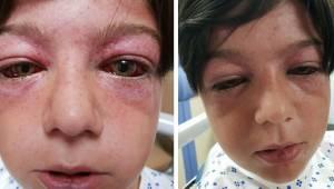 En idiotisk ny karruselleg var lige ved at slå en 11-årig dreng ihjel. Nu advare