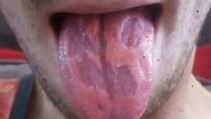 En lærer har offentliggjort en vigtig advarsel, efter at hans tunge blev ødelagt