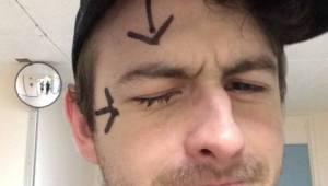 Manden mistede synet på det ene øje, efter at have taget brusebad, uden at have